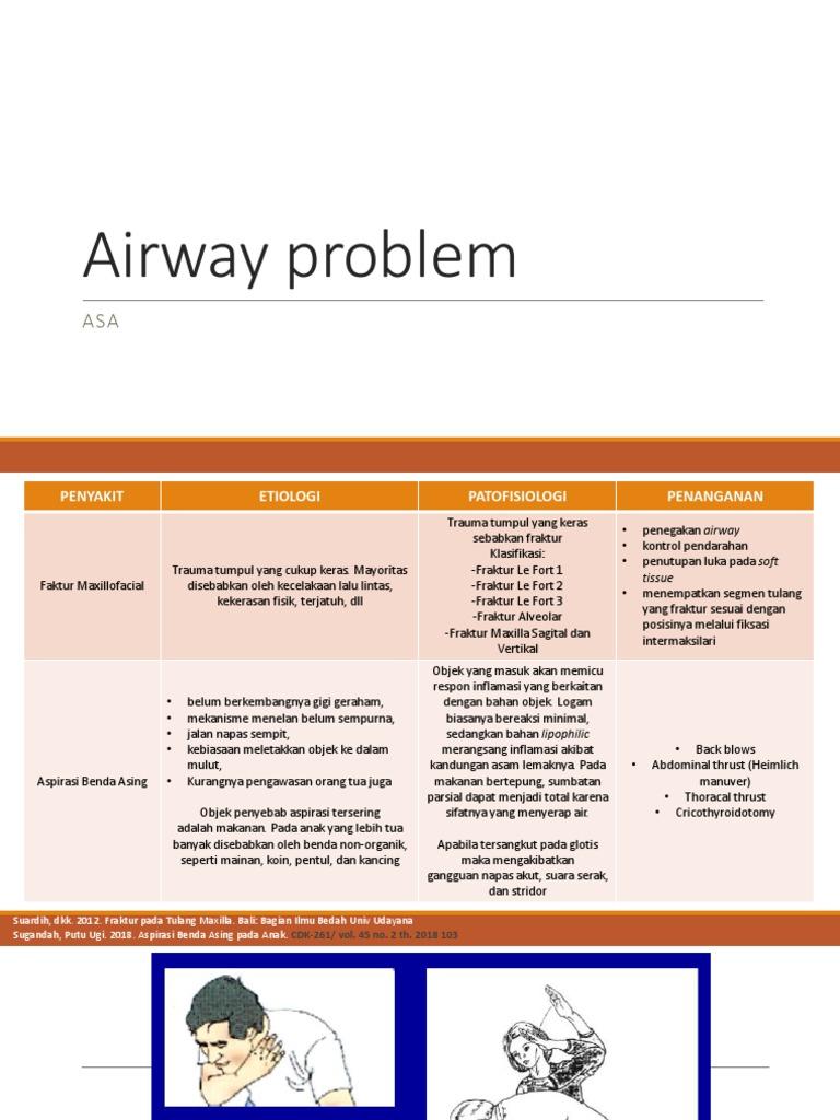 Airway Problem Pentul Men 1539456121v1
