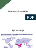 Karsinoma+Nasofaring