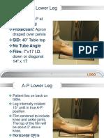 Copy of Week 8 Lower Leg to Calcaneus, Technique Charts 66