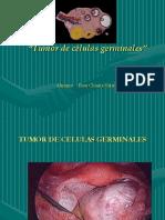 Tumor de Celulas Germinales.ppt