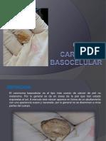 Carcinomabasocelular 150922094927 Lva1 App6891
