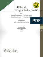 Volvulus Sss