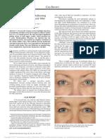 Chronic Eyelid Edema Following Periocular Hyaluronic Acid Filler Treatment