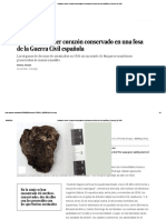 Hallado El Primer Corazón Conservado en Una Fosa de La Guerra Civil Española _ Ciencia