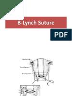 B lynch suture