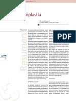 Abdominoplastia.pdf