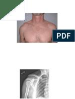 3.2.4.1 - dislokasi tulang