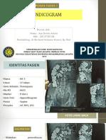 Radiologi Appendisitis
