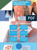 Tuberculosis GRECIA
