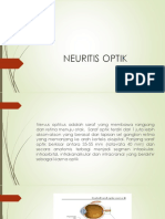 NEURITIS OPTIK.pptx