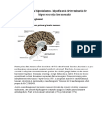 Craniofaringiom