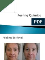 Peelling Químico
