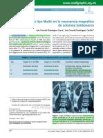 Cambios tipo Modic en la resonancia magnética de columna lumbo sacra.pdf