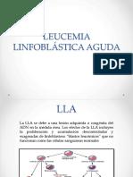 Leucemia linfoblastica aguda
