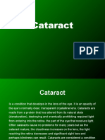 14249012-Cataract