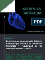 Arritmias cardíacas. Fisiología.