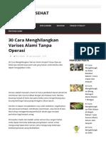 30 Cara Menghilangkan Varises Alami Tanpa Operasi - Cara Hidup Sehat