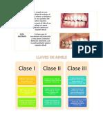 Guías Dentales y Clase de Angle