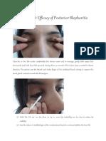 Treatment Efficacy of Posterior Blepharitis