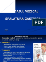 sondaj vezical