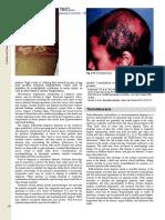 198201_Andrews' Dermatology 12nd ed._split_1.doc