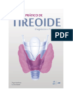Tireoide diagnostico e tratamento