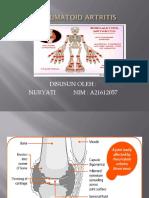 Ppt Rheumatoid Artritis