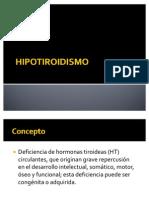hipotiroidismo pediatria
