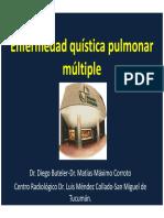 Enfermedad pulmonar quística múltiple 2015.pdf