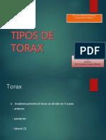 tiposdetorax-160607062519 (1)