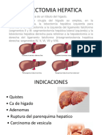 Lobectomia Hepatica