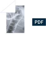 Uropathogenic Escherichia Coli