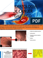 Fisiopatologia de Cancer Gastrico