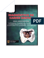 Diagnóstico de Caries Dental Henostroza.pdf