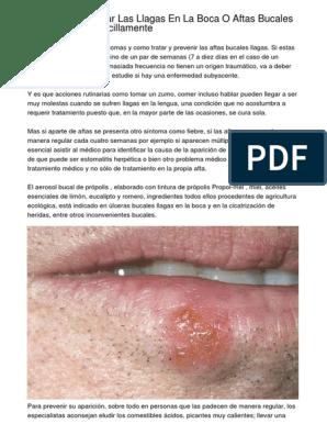 Aftas en la boca tratamiento farmacologico