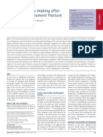 Clinical decision-making after endodontic instrument fracture.pdf