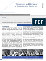 Management of Dilacerated and S-shaped.pdf