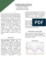 DSP_ECG.docx