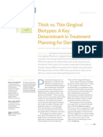 Thick vs. Thin Gingival Biotypes