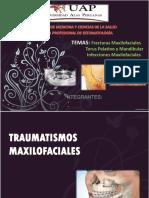torus maxilar