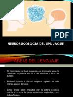 Exposicion de Neuro