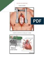 ventriculo unico