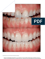Esthetic rehabilitation of a severely worn dentition with MIPP.pdf