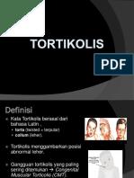 293075053-Tortikolis.ppt