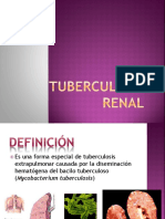 78604074-Tuberculosis-Renal-1.pptx