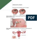 Glosario de Embarazo Parto y Puerperio
