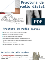 fractura de radio distal.pptx