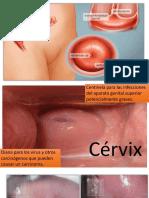 Presentacion en Power Point sobre cáncer de cervix uterino
