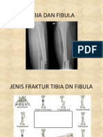 Tibia Dan Fibula