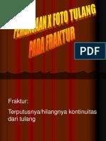 Review Fraktur